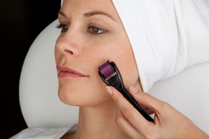Microneedle Therapy System